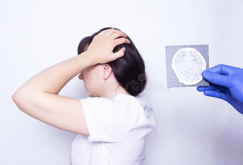 医生拿着一个耐心白种人女孩的X-射线有头疼的和脑子挫伤、头疼的诊断和治疗, 库存照片