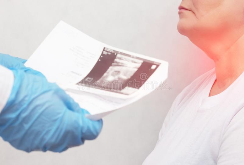 医生拿着一名年长妇女的甲状腺的超声波考试在甲状腺的结和 库存照片