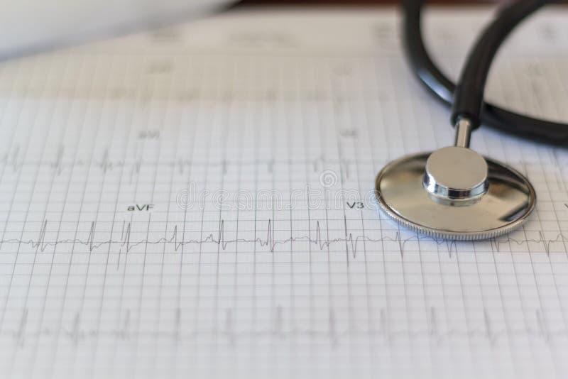 医疗听诊器和ECG测试-心电图 免版税库存照片