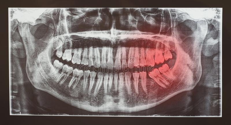 医疗牙齿牙考试造影或放射学  图库摄影