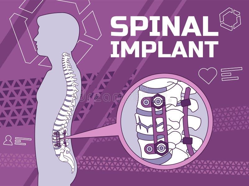 医疗脊髓的植入管的传染媒介例证 皇族释放例证