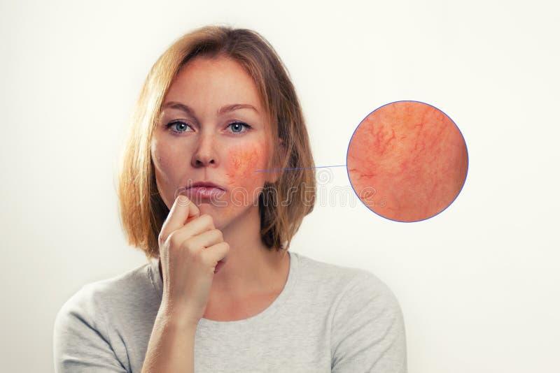 医药、美容、蔷薇科 一个金发女人,脸颊发炎,血管 放大的焦点图像 库存照片