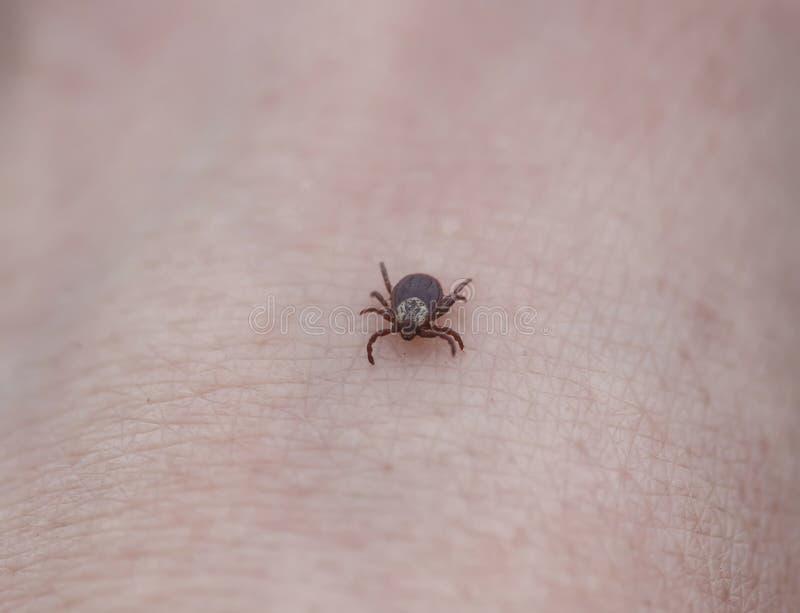危险传染性昆虫强度爬行在人的皮肤的壁虱 免版税库存照片
