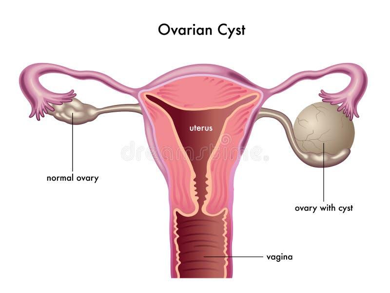 卵巢囊肿 皇族释放例证