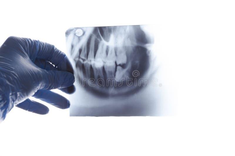 反对白色屏幕的牙齿X-射线 问题智齿 库存照片