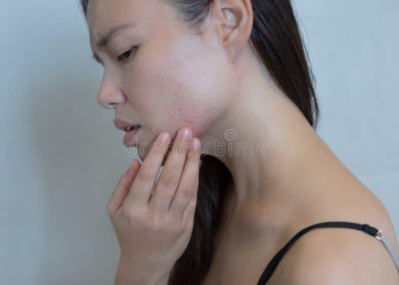 发生与在她的面孔的粉刺的被注重的妇女 免版税库存照片
