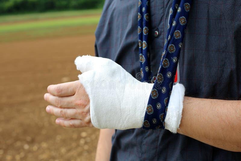 受伤的人的手在骨头的破裂的以后 免版税库存照片