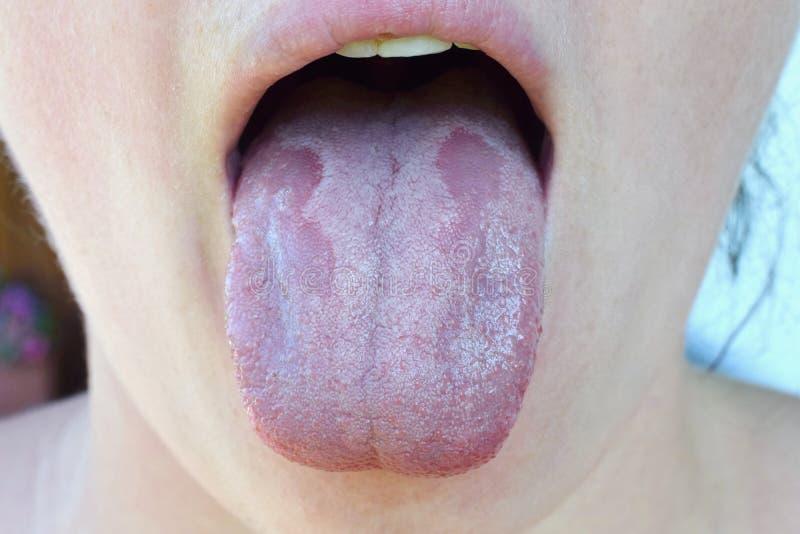 口头念珠菌病或口头trush假丝酵母albicans,在人的舌头关闭的酵母菌感染, 免版税库存图片