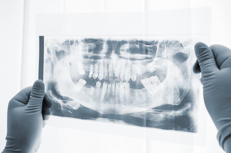 口腔外科准备X-射线扫描特写镜头 免版税库存图片