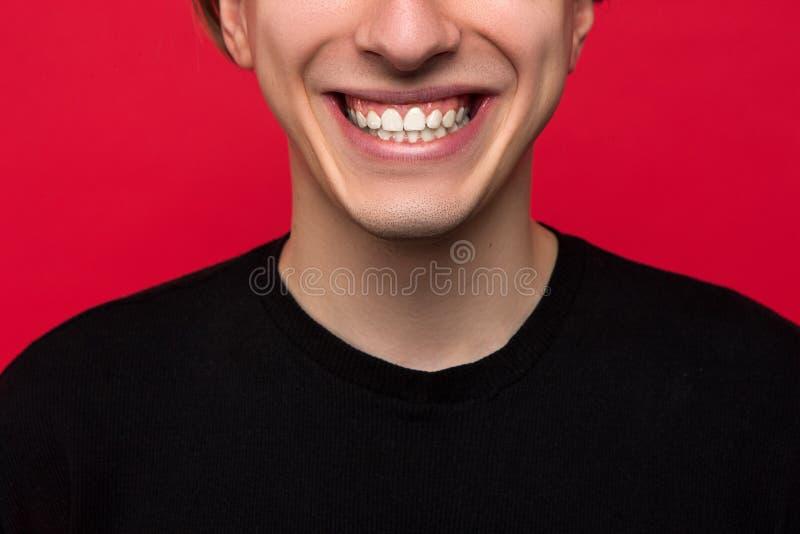 口腔医学广告 白色牙特写镜头 免版税库存图片