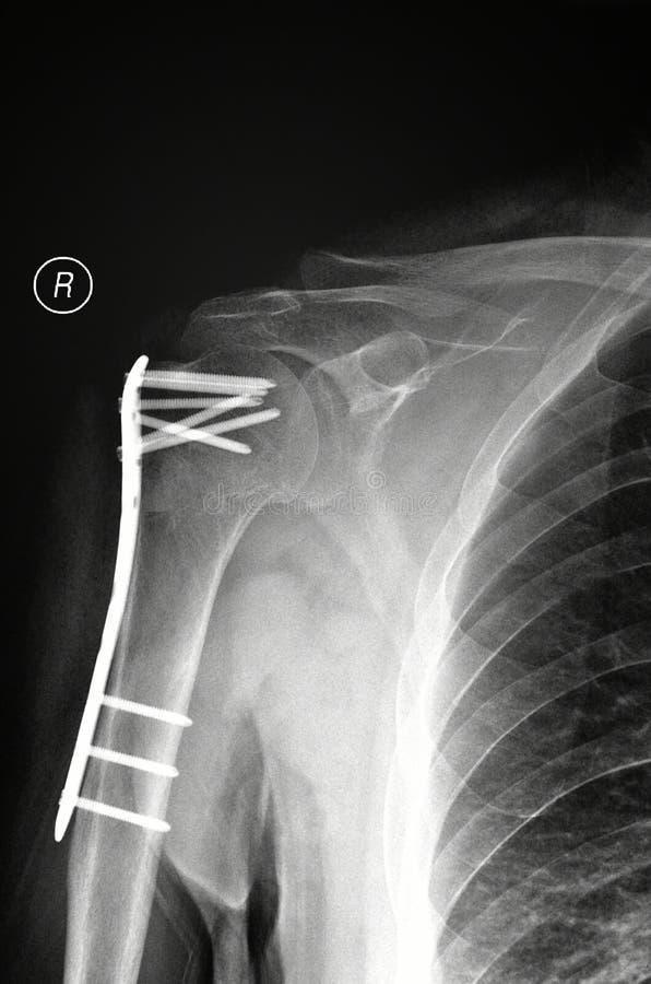 右臂破裂X-射线图片 库存图片