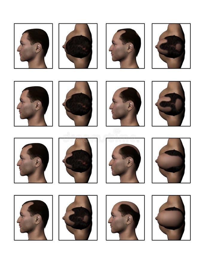 后退成为秃头的细线 向量例证