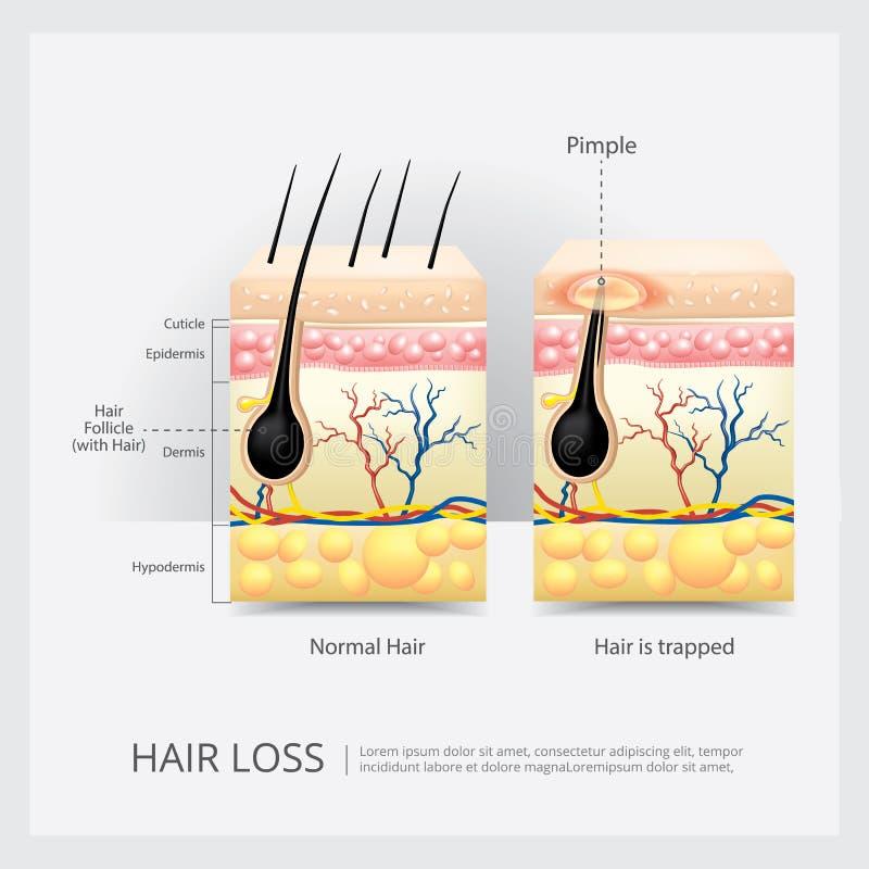 向内生长头发结构 皇族释放例证