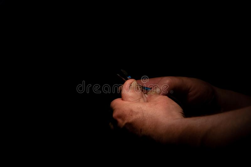 向内生长的脚趾甲 外科医生切开他的趾甲 投入信件的黑色背景  免版税库存图片