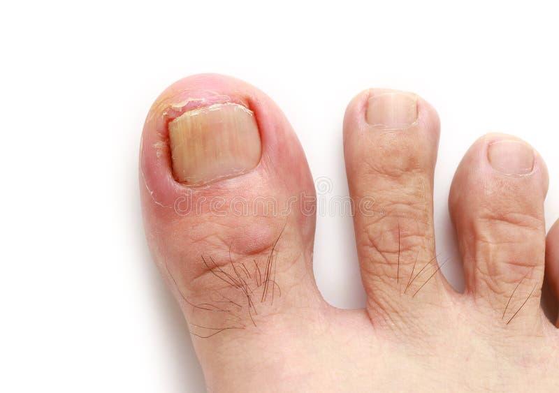 向内生长的脚趾甲 免版税库存照片