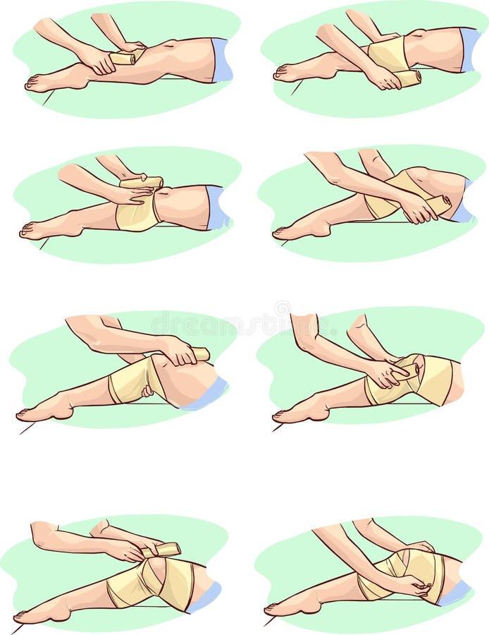 向内生长的脚趾甲 向量例证