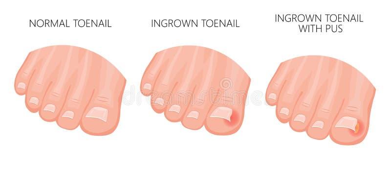 向内生长的脚趾甲 皇族释放例证
