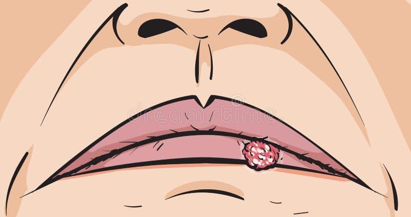 唇疱疹 库存例证