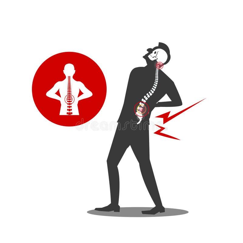 商人Musculotendinous张力后背疼痛或腰部痛苦的例证 库存例证