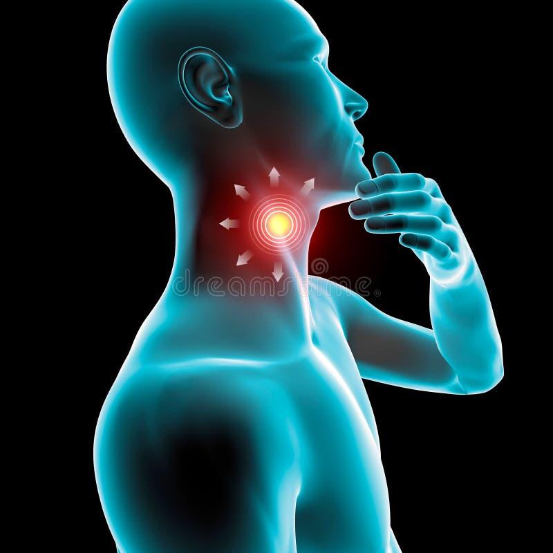 喉咙痛炎症,赤红,痛苦, 皇族释放例证