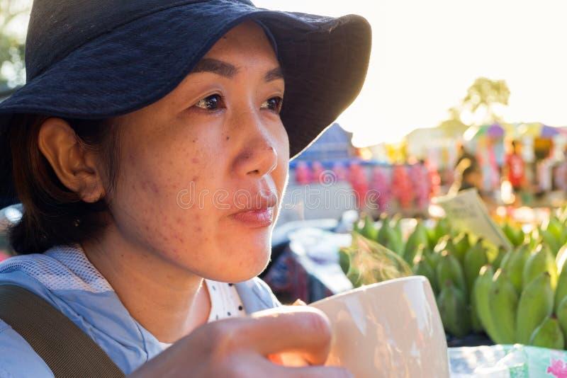 喝补充食物饮料面部粉刺的亚裔妇女和 免版税库存照片
