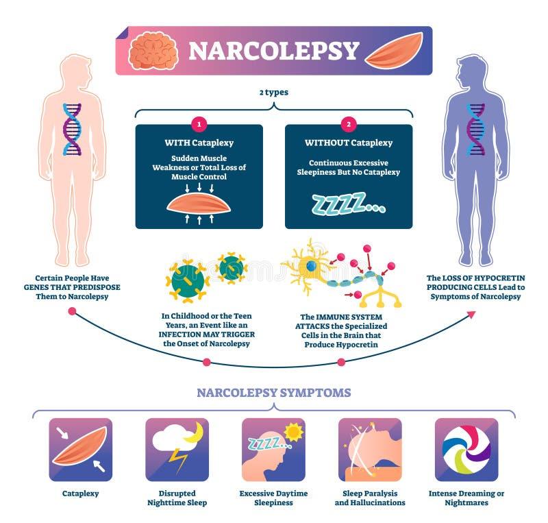 嗜眠发作传染媒介例证 infographic被标记的肌肉强度的疾病 库存例证