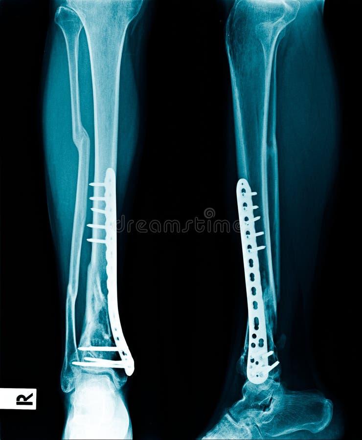 固定的胫骨骨头X-射线 免版税库存图片