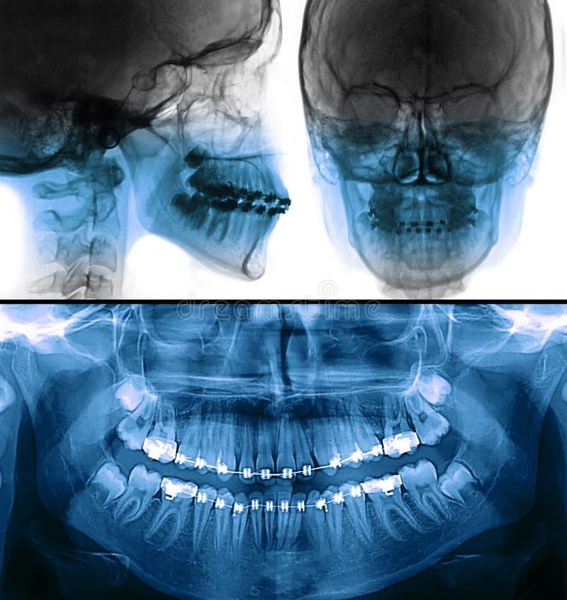 固定的装置托X-射线,正牙学治疗 免版税库存照片