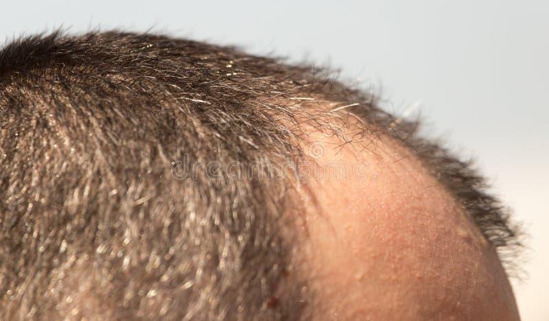 在一个人的头的秃头斑点 库存照片
