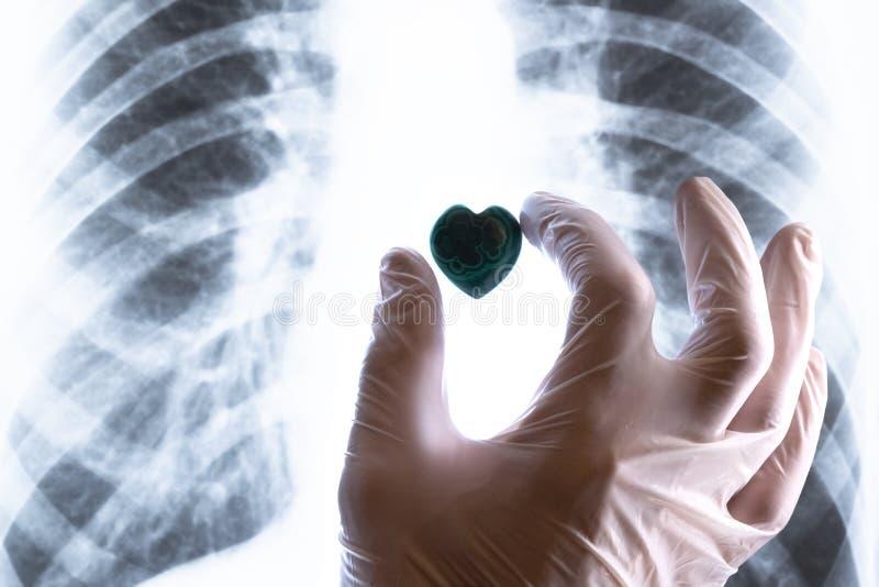在一副白色医疗手套的一只手在胸部X光放置石心脏 心脏手术、心脏病问题或者标志的概念  免版税库存照片