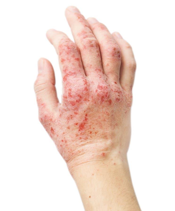 在一只女性手上的湿疹 免版税图库摄影