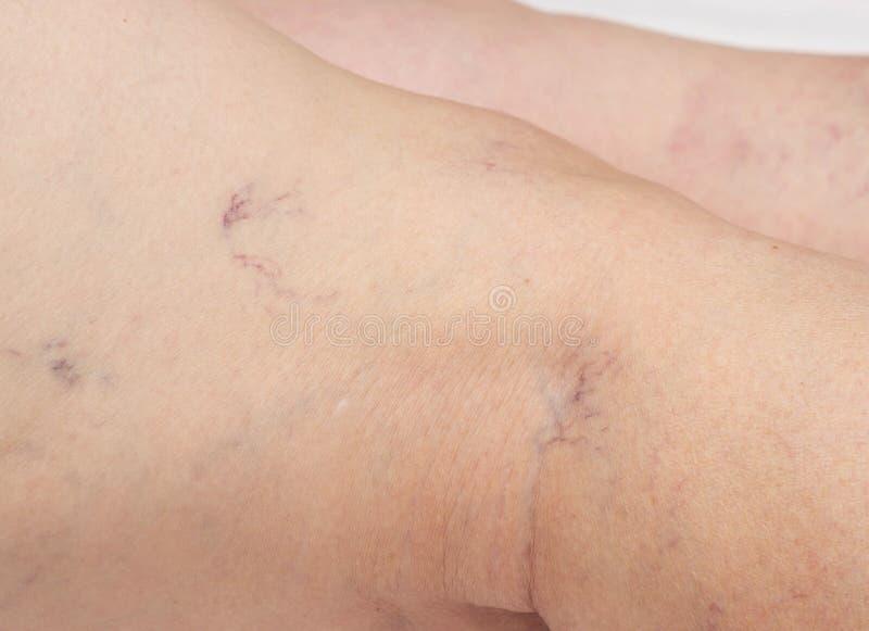 在一名年长妇女的腿的静脉曲张,特写镜头,在皮肤,血栓静脉炎的蜘蛛静脉 免版税图库摄影