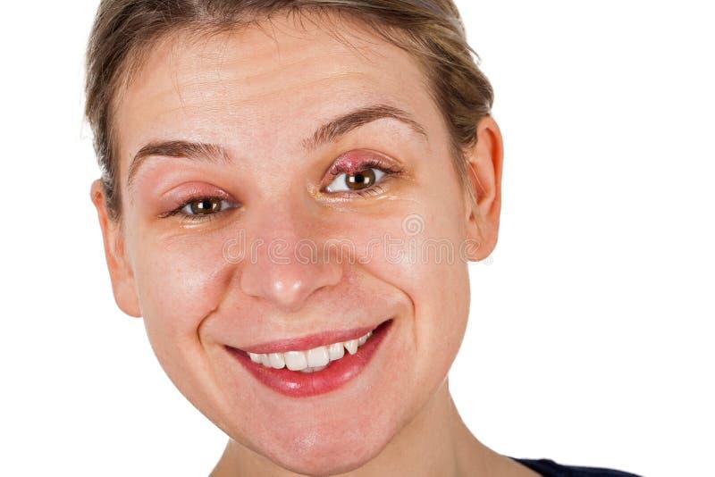 在上部眼皮的猪圈 痛苦的微笑 库存图片