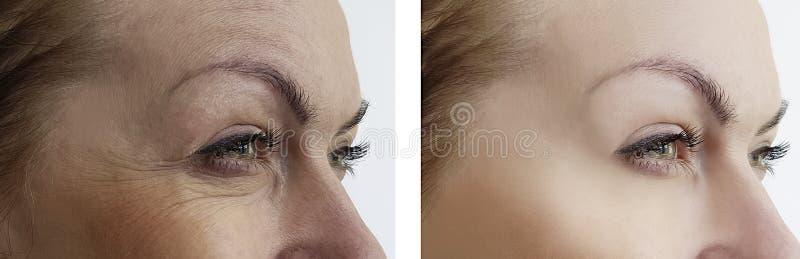 在举的疗法治疗前后,女孩起皱纹撤除眼睛 库存图片