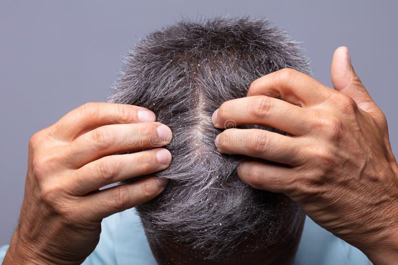 在人的头发的头屑 库存照片
