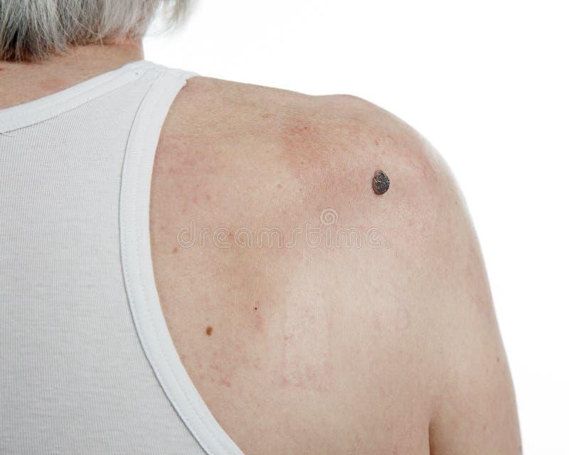 在人的皮肤癌 免版税库存照片