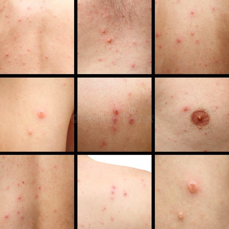 在人的皮肤的水痘 免版税库存图片