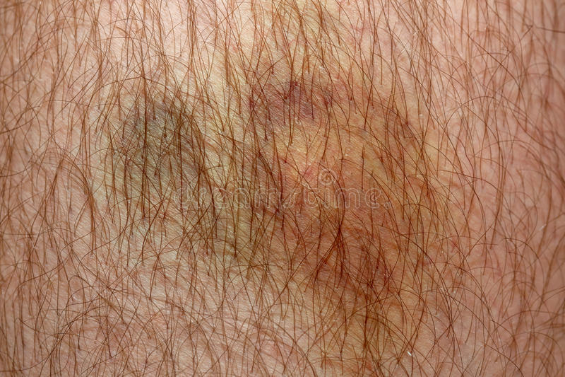在人的皮肤,宏指令的讨厌的看起来的真正的挫伤 免版税库存照片