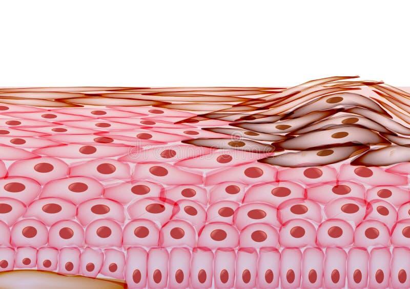 在人的皮肤,巨蟹星座的层数的黑瘤-导航Illustrati 库存例证