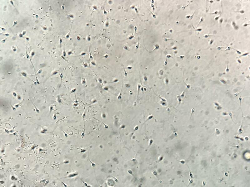 在人的精液的看法在显微镜下在实验室 免版税库存照片