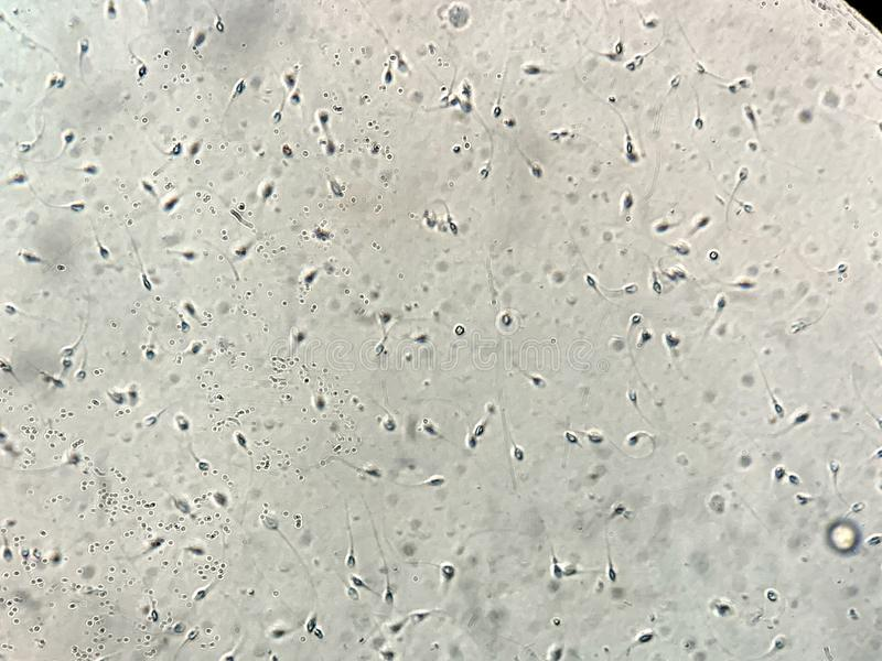 在人的精液的看法在显微镜下在实验室 免版税图库摄影