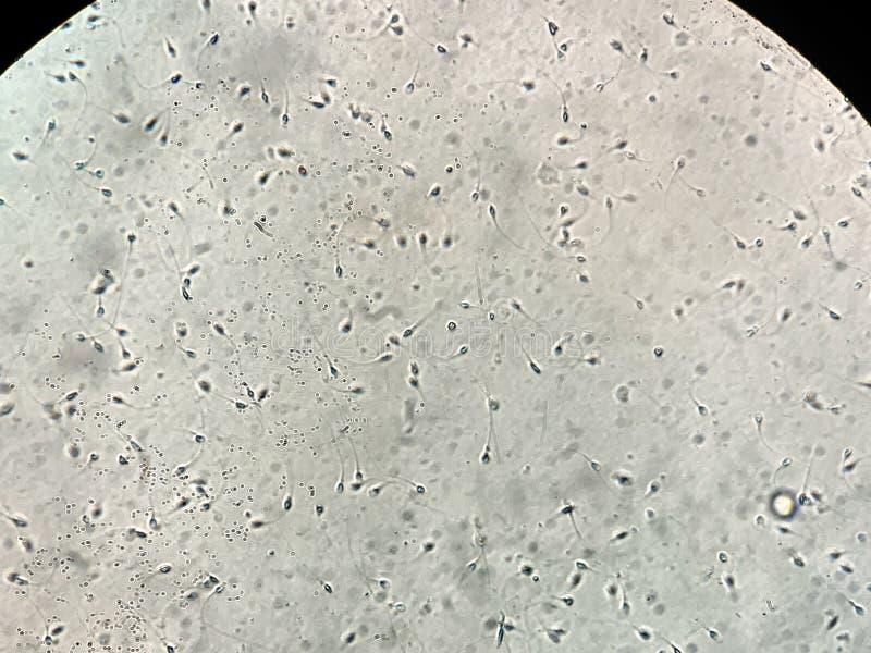 在人的精液的看法在显微镜下在实验室 库存照片