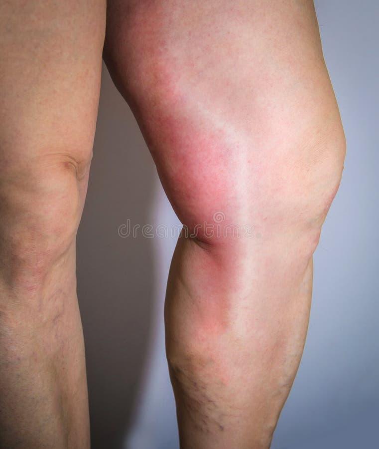 在人的腿的血栓静脉炎 免版税图库摄影