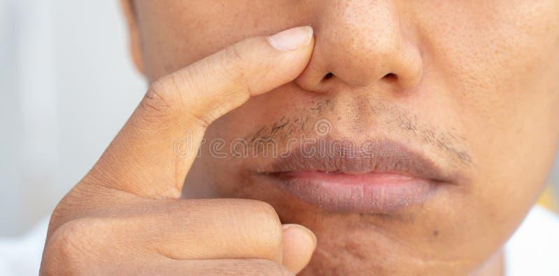 在人的鼻子的粉刺问题 库存图片
