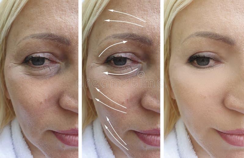 在做法前后的白种人面部妇女皱痕撤除胶原更正biorevitalization治疗 库存照片