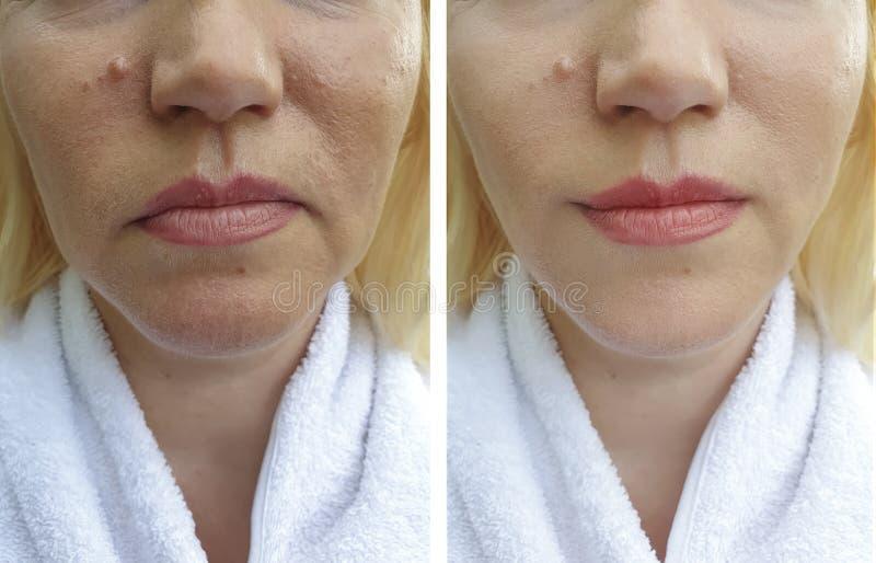 在做法前后,年长妇女的面孔起皱纹举的胶原皮肤学再生治疗疗法 免版税图库摄影