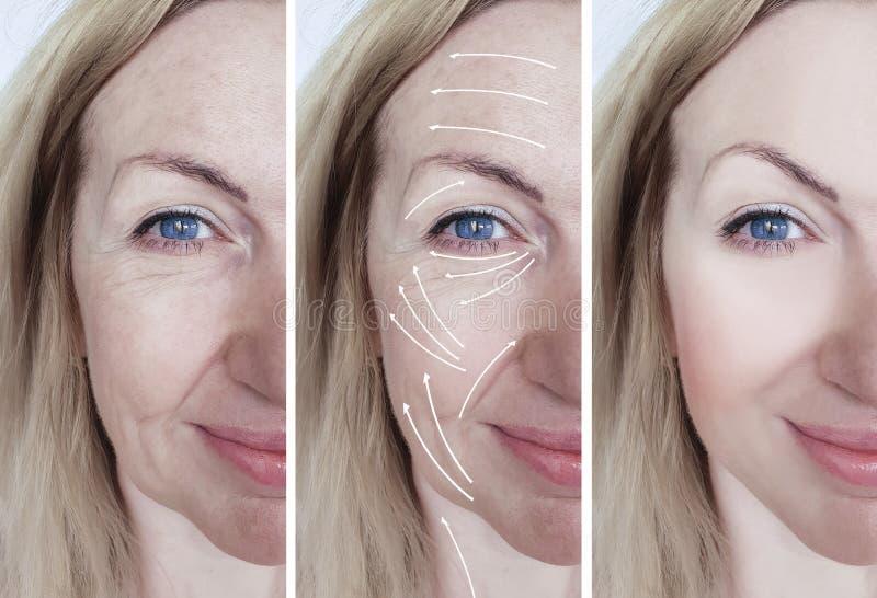 在做法箭头前后的妇女面部皱痕更正区别 库存照片