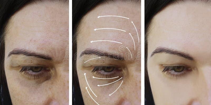 在做法removaltreatment前后,妇女脸面护理起皱纹结果整容术 库存照片