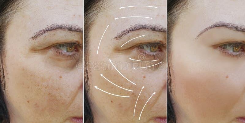 在做法removaltreatment前后,妇女脸面护理起皱纹结果 库存照片