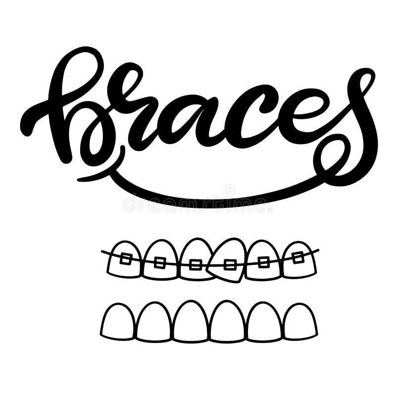 在关于正牙学治疗的例证和与括号的图象的传染媒介牙齿医疗保健上写字在牙的 EPS10 库存例证